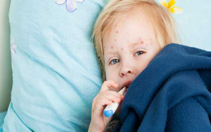 Chickenpox everything you need to know